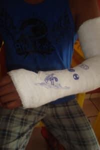 """""""Se fosse pelo médico do Upa, estaria andando com o braço quebrado sem saber"""""""