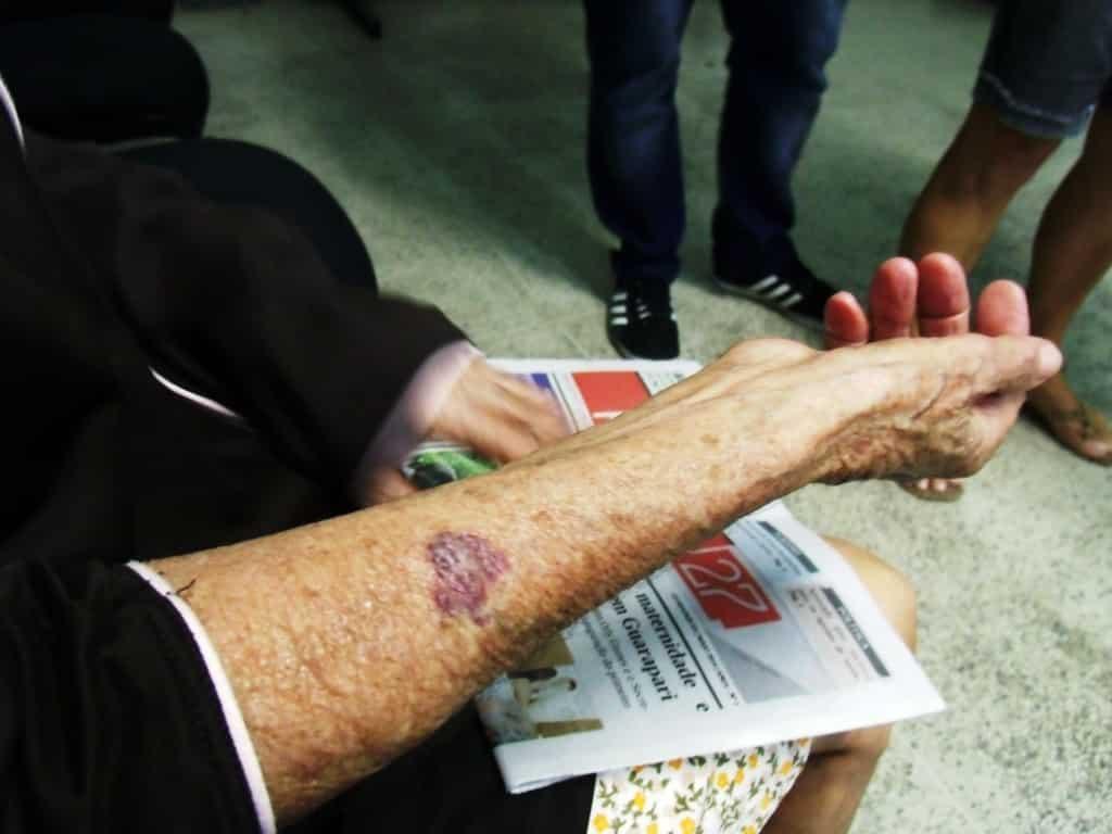 A idosa conta a ação dos criminosos foi muito rápida. Eles a machucaram no braço.